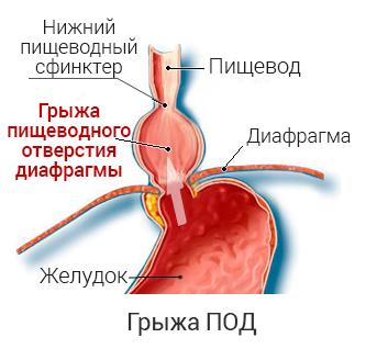 грыжа пищевода