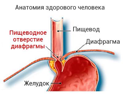 пищеводное отверстие диафрагмы