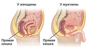 расположение прямой кишки у мужчин и женщин