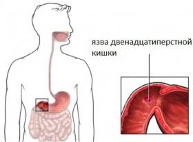 симптомы язвы 12-ти перстнй кишки
