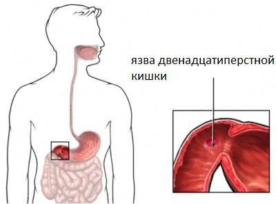 Как диагностировать болезни
