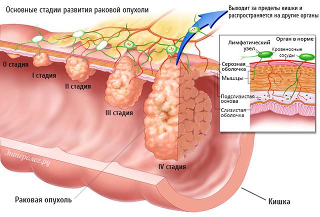 стадии развития раковой опухоли в кишке