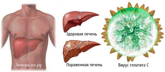 вирус гепатита поражающий печень