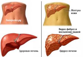 симптомы болезней печени