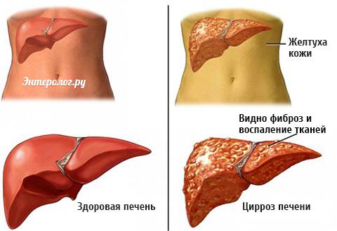 Первые признаки алкогольного цирроза