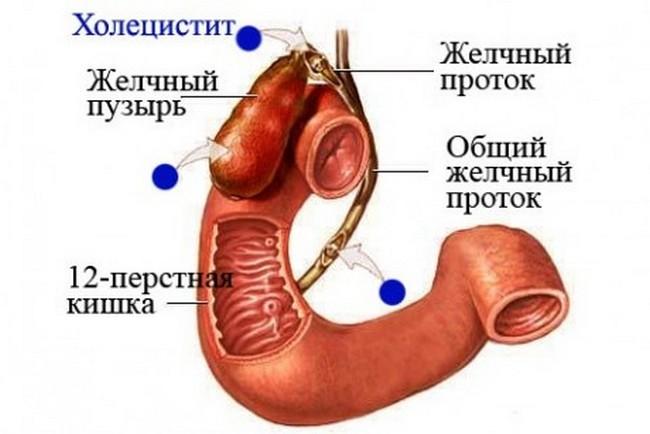 Строение желчного пузыря и желчных протоков