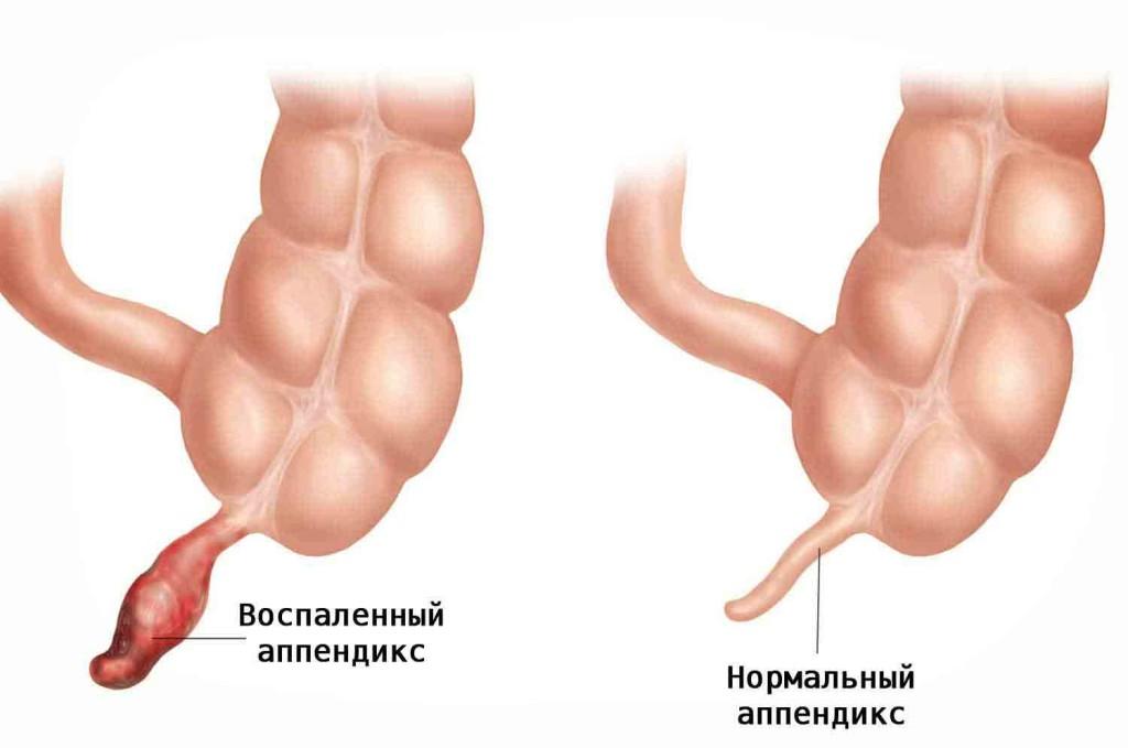 воспалённый аппендикс