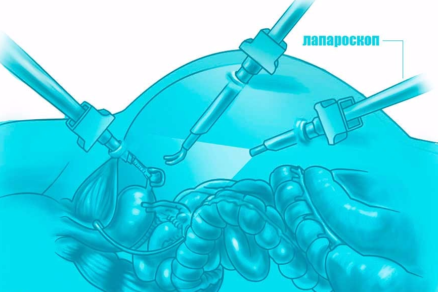операция аппендэктомии у беременной