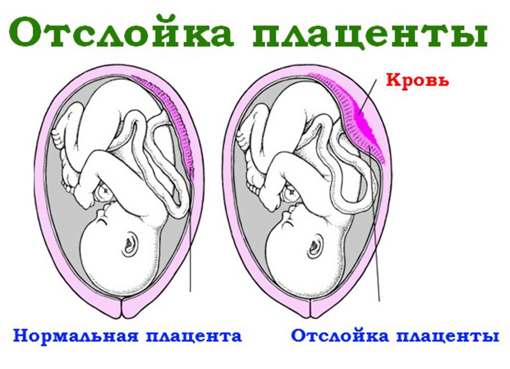 Признаки аппендицита при беременности