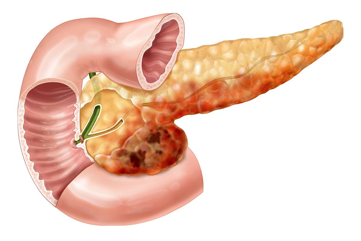 Что означают диффузные изменения паренхимы поджелудочной железы?