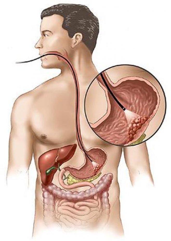 Ахилия желудка функциональная