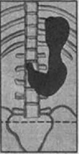 Первая степень гастроптоза