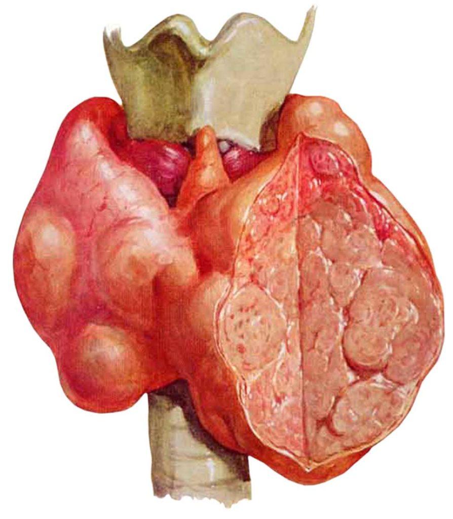 Щитовидная железа при тиреотоксикозе