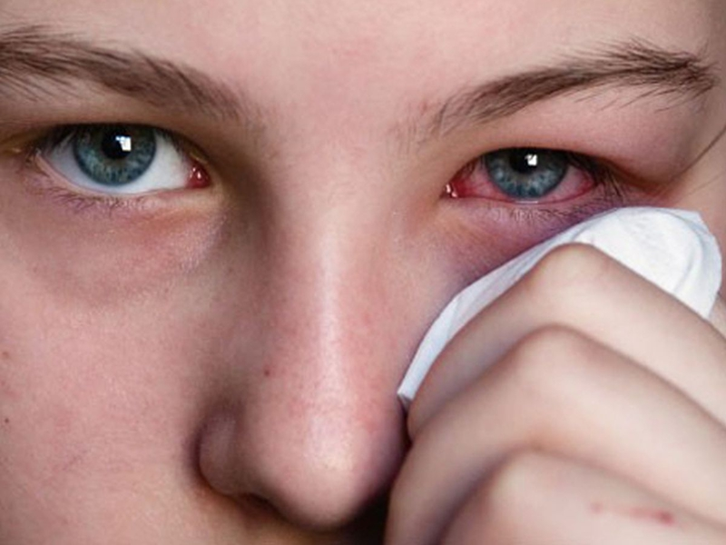 Воспаление слёзного канала