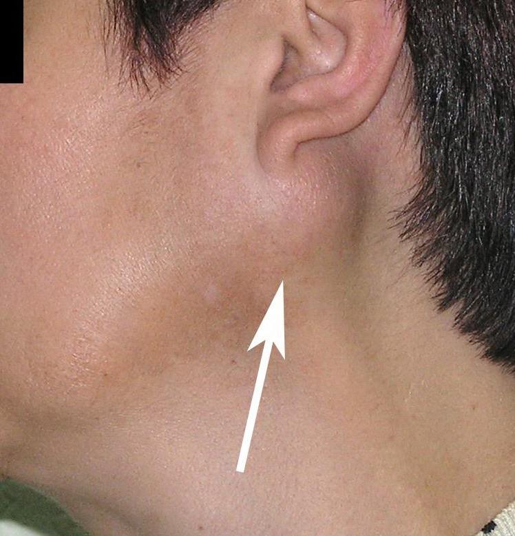 Воспаление заушной слюнной железы в виде припухлости