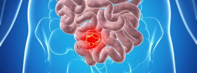 Кровь при дефекации - симптом болезней желудочно-кишечного тракта