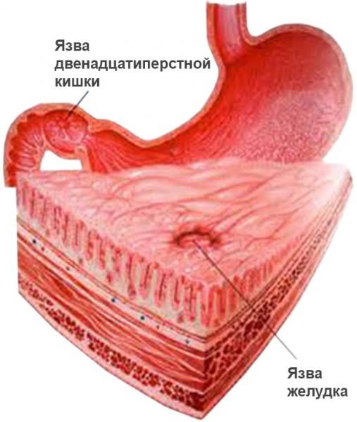 Кровотечение из язвенного дефекта