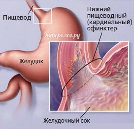 неполное смыкание кардиального сфинктера