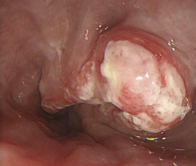 плоскоклеточный рак пищевода