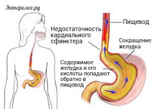 содержимое желудка попадает обратно в пищевод