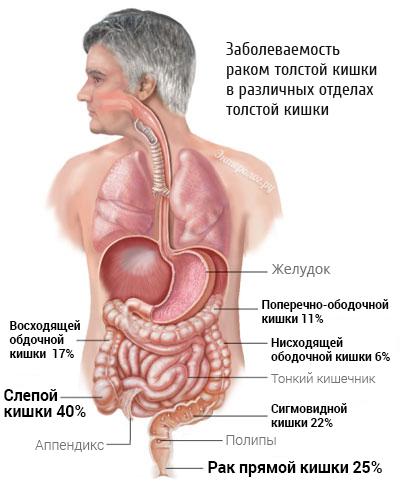 частота поражения раком различных отделов кишечника