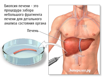 процедура биопсии печени
