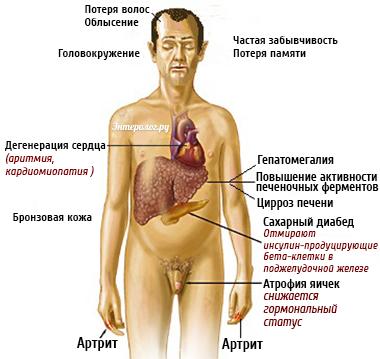 внешние симптомы болезни печени у мужчин