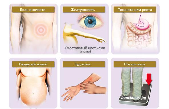 первичные симптомы болезни печени