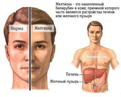 внешние симптомы дисфункции печени и желчного пузыря
