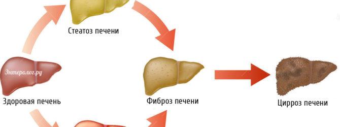 схема изменения состояния печени под влиянием гепатита и стеатоза