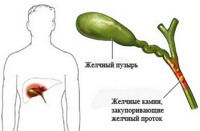 Калькулёзный холецистит