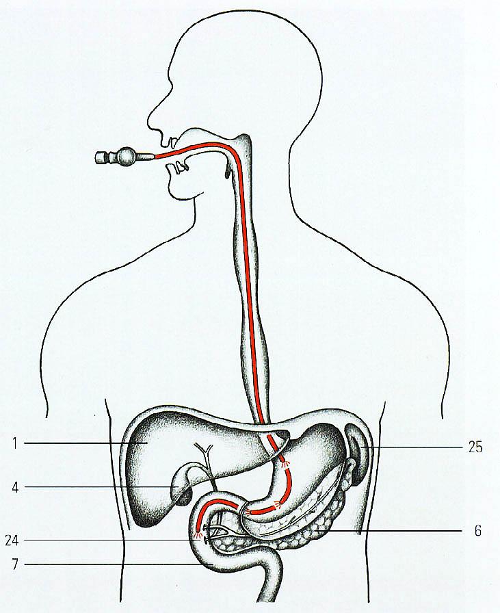 Желудочный зонд