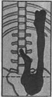 Третья степень гастроптоза
