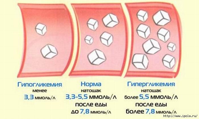 Уровень глюкозы