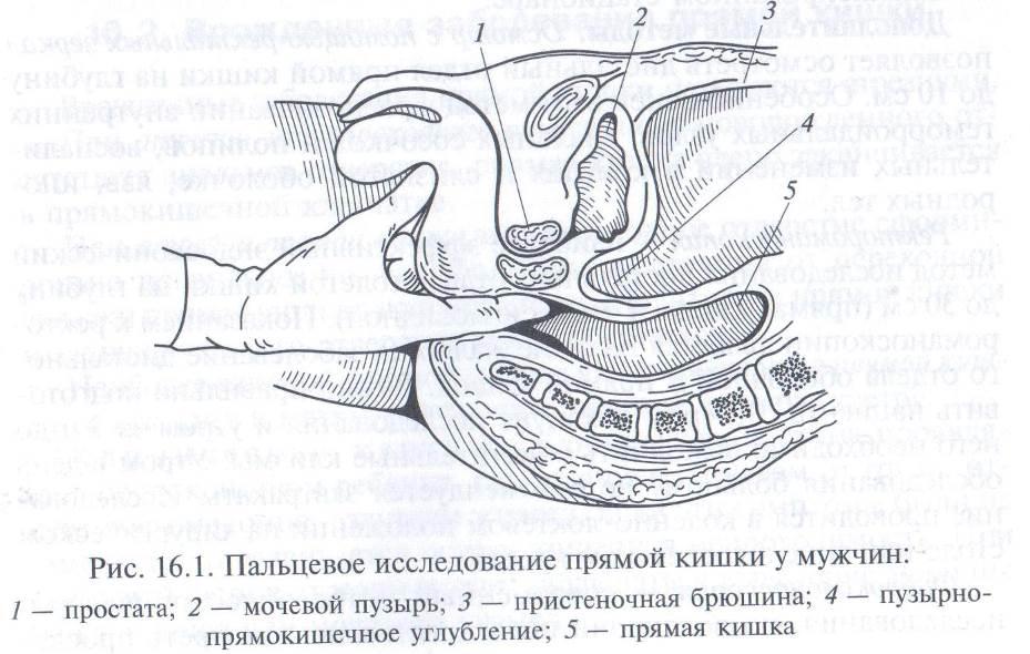 Пальцевой осмотр прямой кишки
