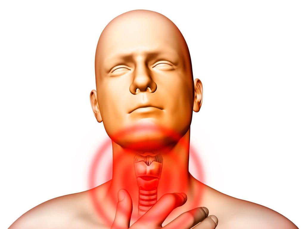 Схематичное изображение гиперфункции щитовидной железы